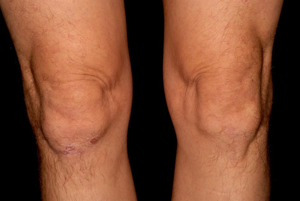 láb psoriasis kezelése