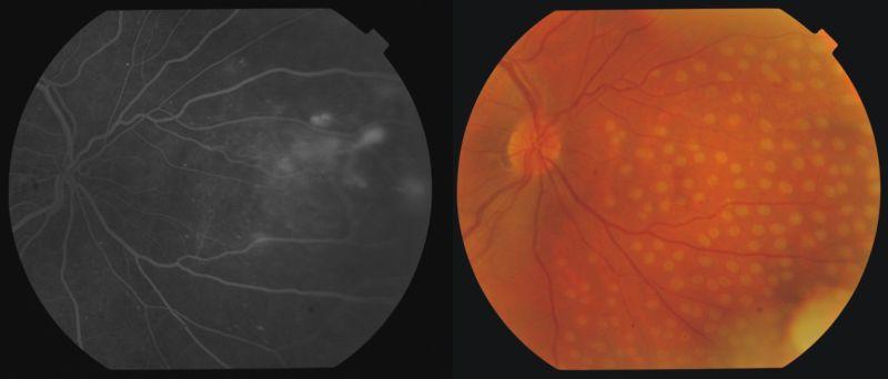 retinopathia kezelése magas vérnyomás esetén)
